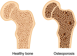 BEING OVERWEIGHT IS HARMFUL FOR BONES AND KNEES